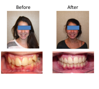 braces-orthodontist-nyc-before-after-14