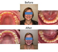 braces-orthodontist-nyc-before-after-20