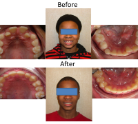 braces-orthodontist-nyc-before-after-23