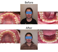 braces-orthodontist-nyc-before-after-65